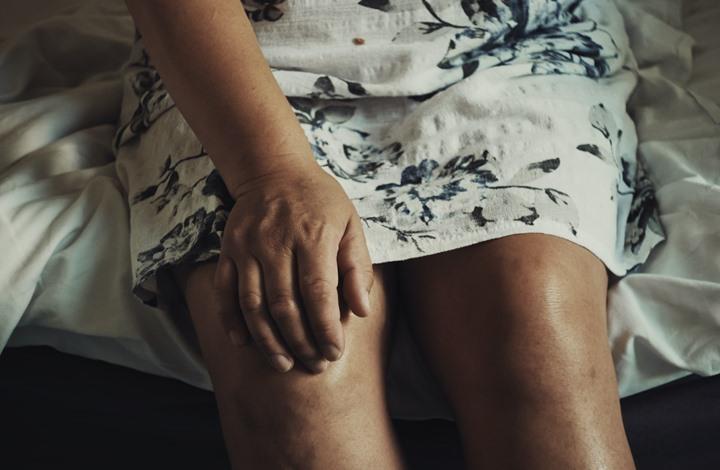 النظام الغذائي المناسب لمرضى التهاب المفاصل الصدفي