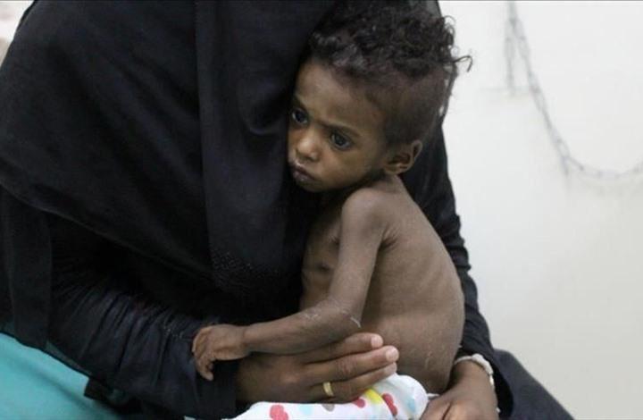 الأمم المتحدة: ارتفاع حالات سوء التغذية بين أطفال جنوب اليمن