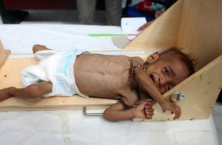 واشنطن بوست: هذا ما على الولايات المتحدة فعله لإنقاذ اليمن