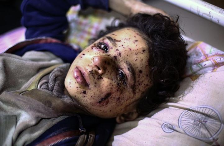 """النظام يحوز """"حصة الأسد"""" بأرقام ضحاياه من الأطفال (إنفوغراف)"""