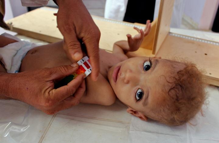الأمم المتحدة: أكثر من نصف قتلى الحرب باليمن أطفال ونساء