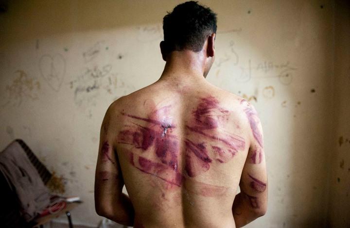 WP: تعذيب وانتهاكات جنسية واسعة لمعتقلي نظام الأسد