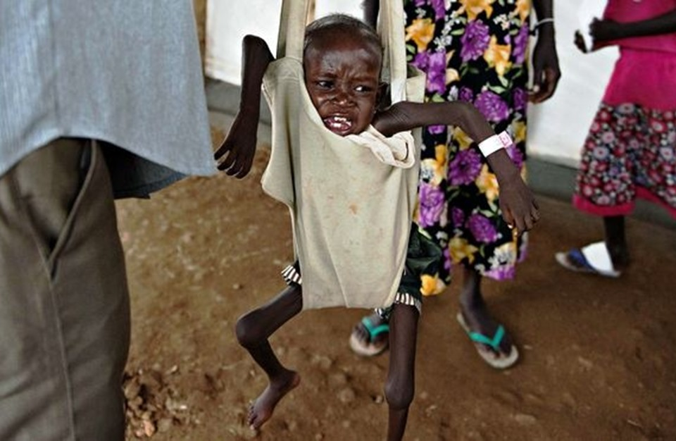 23 منطقة بالعالم معرضة لمجاعة قاسية خلال 90 يوما