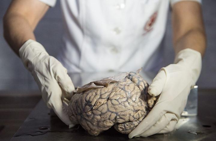 لأول مرة.. علماء يستيطعون زراعة دماغ بشري مخبريا