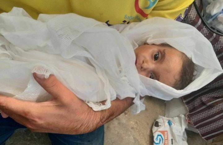 وفاة مؤلمة لطفلة بمخيمات سوريا بسبب سوء التغذية (شاهد)