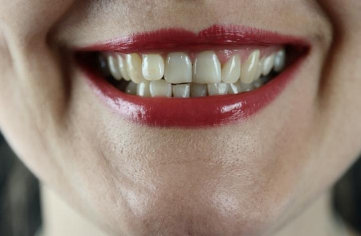 8 طرق طبيعية لتبييض أسنانك في المنزل