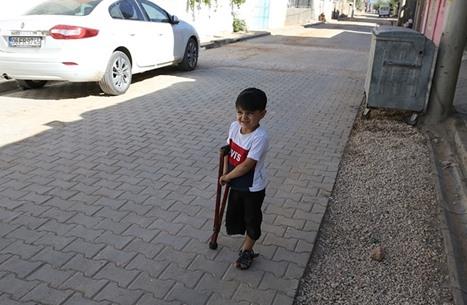 طفل سوري بتركيا يتحدى الحياة بساق صناعية