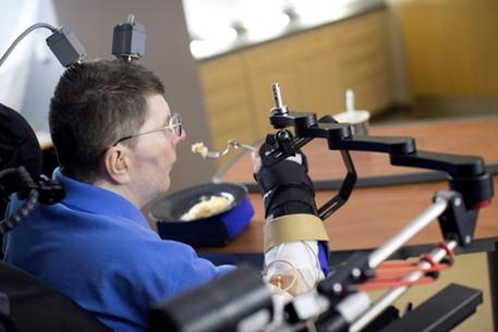 مشلول يستعيد القدرة على استخدام ذراعه في سابقة طبية