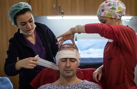 صندي تايمز: بريطانيون يستغلون الوباء لزراعة شعرهم في تركيا