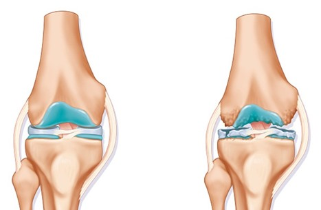 غضروف اصطناعي قوي بما يكفي لاستخدامه لمنع احتكاك الركبتين