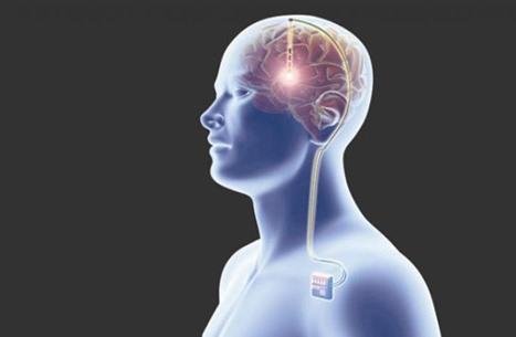 إليك أغرب الأشياء التي عُثر عليها داخل أجسام البشر