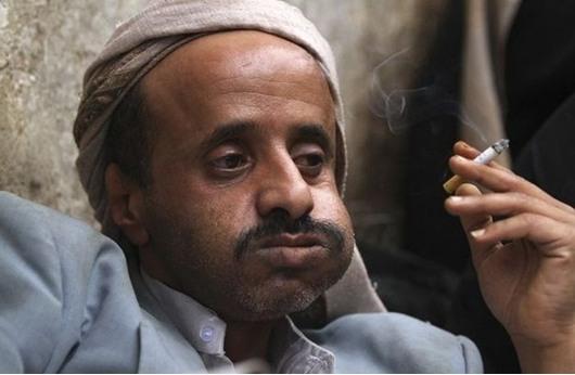 القات والقهر يقودان اليمنيين إلى الانتحار