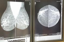 مستشفى يهب الأمل لمرضى سرطان الثدي في الخرطوم