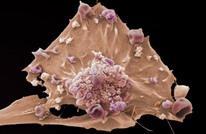 علماء يجرون أبحاثا لكشف العلامات المبكرة للسرطان