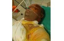 وفاة رجل أحرق نفسه بكوباني بعد تجنيد ابنته بالوحدات الكردية