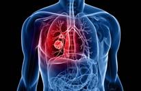 دراسة: تناول اللبن والألياف يقلل الإصابة بسرطان الرئة