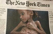 """وفاة """"أمل"""" اليمنية التي أثارت صورتها ضجة عالمية"""