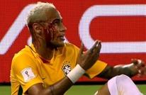 شاهد أخطر إصابات لاعبي كرة القدم