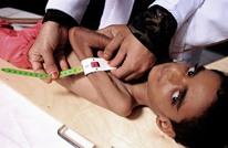 """""""الجحيم الحي"""".. إحصائية مفزعة لوضع الأطفال اليمن (إنفوغراف)"""