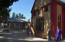 أفغاني يقطع أنف زوجته إثر خلاف بينهما