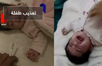 سعودي يعذب طفلته وجهات حكومية تتدخل
