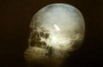 مفاجأة دراسة جديدة.. رابط بين نوع من البدانة وحجم الدماغ