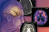 دراسة: الشعور بالوحدة مقدمة للإصابة بالزهايمر