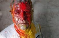 الأمن المصري يعتدي بالدهان على ناشط حقوقي(شاهد)