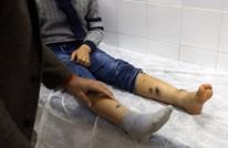 أنباء عن وصول مرض الليشمانيا للثمامة في الرياض.. والصحة تعلق