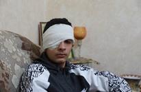 طفل فلسطيني فقد عينه برصاص الاحتلال يروي معاناته (صور)