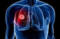 جوجل تطور تطبيقا بإمكانه اكتشاف سرطان الرئة