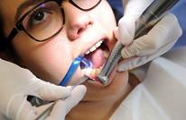 كيف تزيل الجير من الأسنان دون الذهاب إلى الطبيب؟