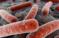 منظمة الصحة: السل أصبح السبب الرئيسي للوفاة بدلا من الإيدز