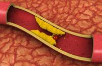 """دراسة: زيادة نسب """"الكوليسترول"""" في الدم تسّبب هشاشة العظام"""