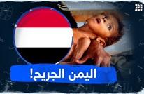 اليمن الجريح!
