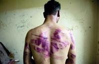 """""""رايتس ووتش"""" تطالب بفتح تحقيق بجرائم التعذيب بمصر"""