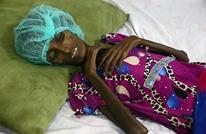 """الأمم المتحدة تحذر من مجاعة باليمن.. """"عد تنازلي لكارثة"""""""