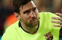 أبطال أوروبا.. هل يشارك ميسي ضد يونايتد بعد إصابته في الوجه؟