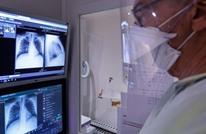 أطباء هنود يحذرون من استخدام علاج الملاريا مع مصابي كورونا