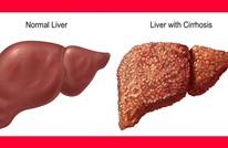 طبيب مصري بأستراليا يكتشف البروتين المسبب لتليف الكبد