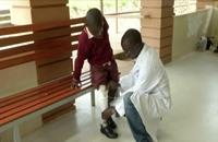 تقنية الأبعاد الثلاثية تقدم حياة جديدة لمبتوري الأعضاء في أوغندا