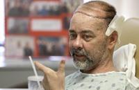 جراحة نادرة في تكساس لزرع جزء من الجمجمة وفروة الرأس