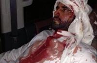 قوات الأمن الكويتية تطارد متضامنين مع البراك