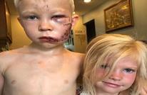 مجلس الملاكمة العالمي يكرم طفلا أنقذ شقيقته من كلب شرس (صور)