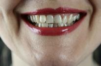 8 أطعمة تجعل أسنانك صفراء انتبه منها