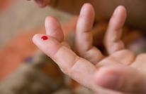 دراسة: لعق الجروح يساعد على التئامها بسرعة