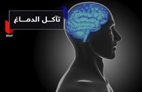 قلة النوم ليلاً تؤدي لتآكل الدماغ.. كيف ذلك؟!