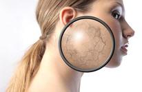 هافينغتون بوست: تعرف إلى 6 طرق يؤثر بها التوتر على بشرتنا
