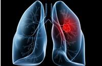 أمريكا: عقار يثبت فاعليته في وقف نمو سرطان الرئة