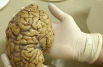 ثلاثة آلاف دماغ بشري تحت البحث لدراسة الأمراض النفسية